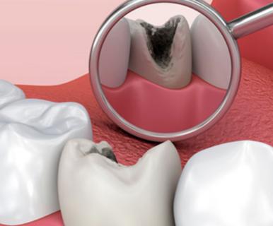 Что такое кариес зубов?