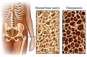 Сравнение нормальной кости и поражённой остеопорозом