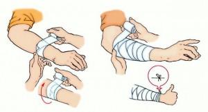 Ранения: виды и первая медицинская помощь