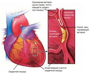 Инфаркт миокарда неотложная помощь алгоритм