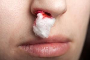 Оказание первой помощи при возникновении носового кровотечения
