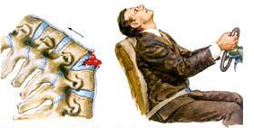 Как оказать помощь пострадавшему с переломом позвоночника