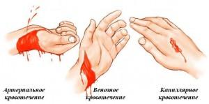 Первая помощь при артериальном кровотечении по пунктам