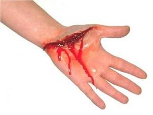 Признаки кровопотери