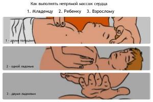 Правила выполнения массажа