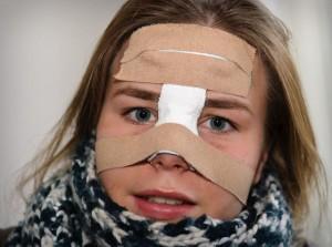 Последствия после перелома носа
