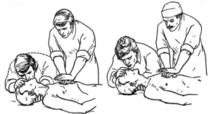 Каким образом проводится сердечно легочная реанимация пострадавшего