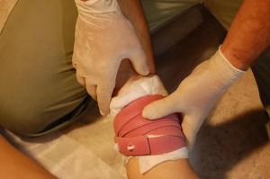 Правила наложения жгута при артериальном кровотечении