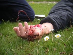 Признаки артериального кровотечения и его опасность