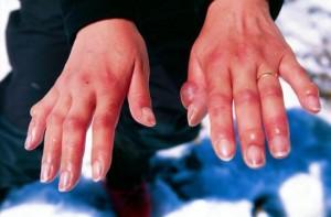 что делать при обморожении рук