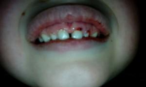 Травмирование зубов