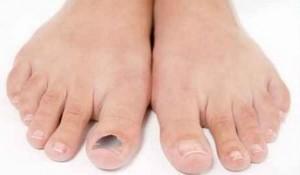 Как проявляется ушиб пальца на ноге
