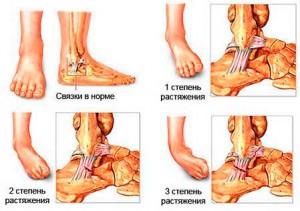 Виды и симптомы травмы